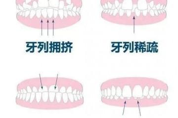 矫正牙齿是为了变美 更是为健康 笑研所带来隐形正畸新体验